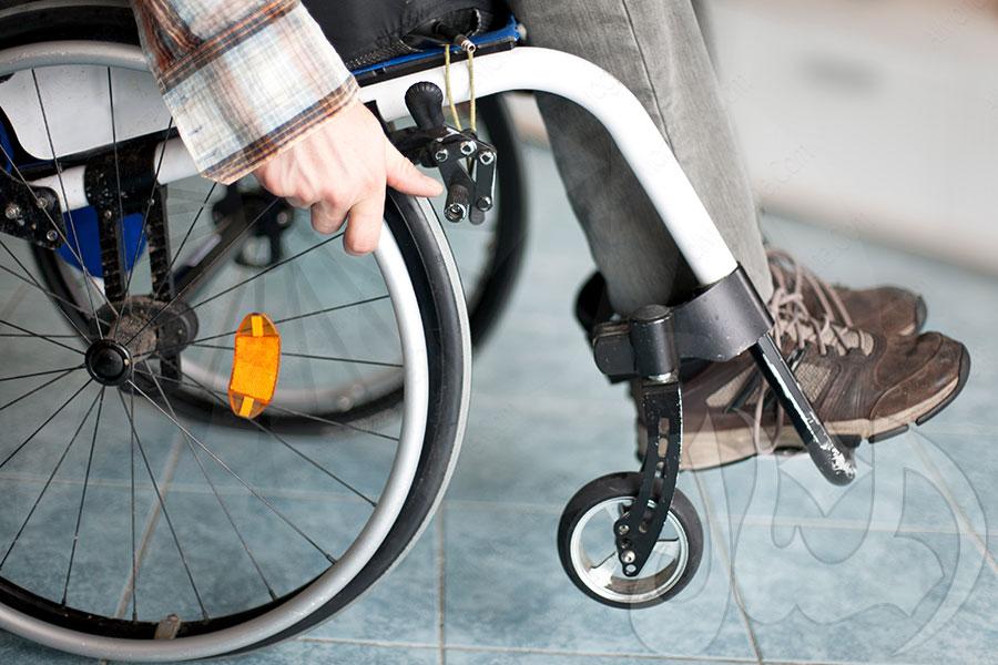 تقبل الإعاقة