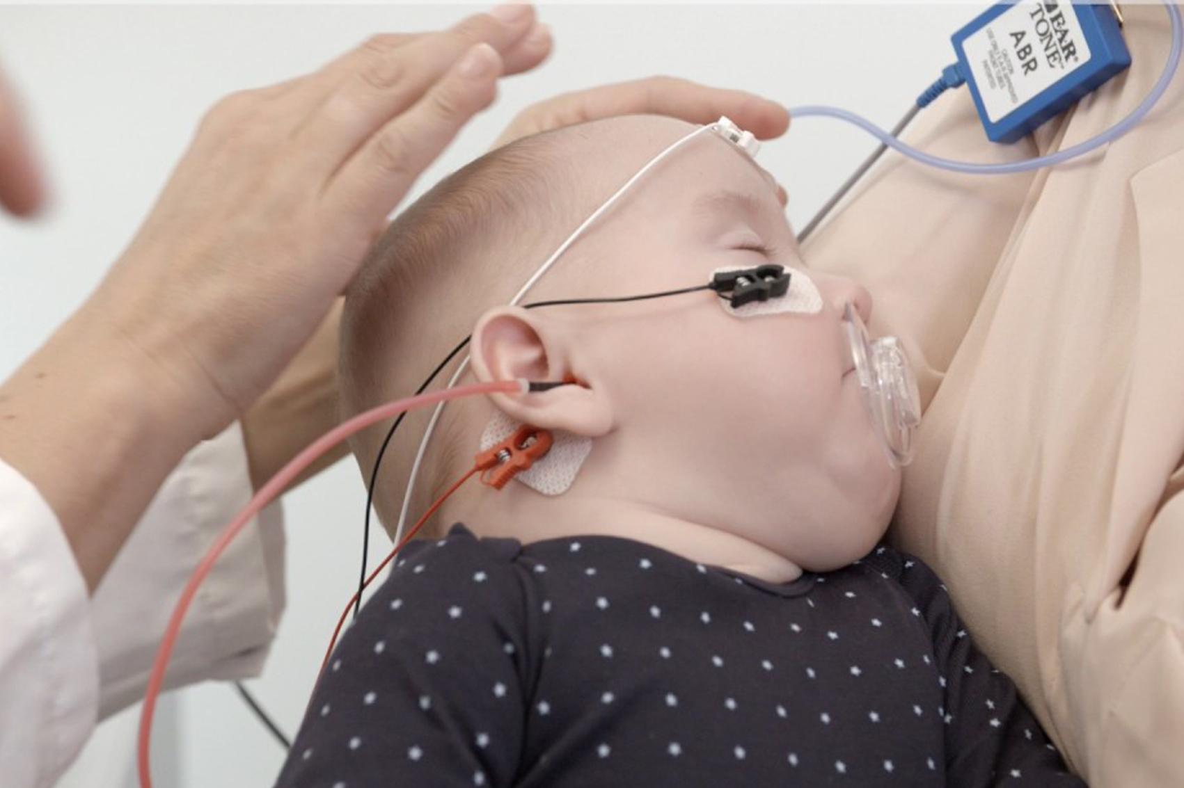 اختبار استجابة جذع الدماغ السمعية (ABR)