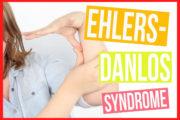 متلازمة إهلرز - دانلوس أو الجلد مفرط المرونة